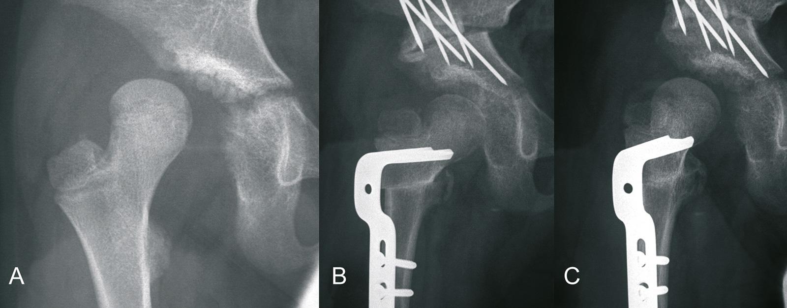 Abb. 2-71: Hüftluxation bei einem Patienten mit Down Syndrom (A), Reposition und Salter Osteotomie in Kombination mit einer DVO (B), im Verlauf erneute Subluxation (C) (Eigentum des Instituts für Klinische Radiologie der Universität Münster)