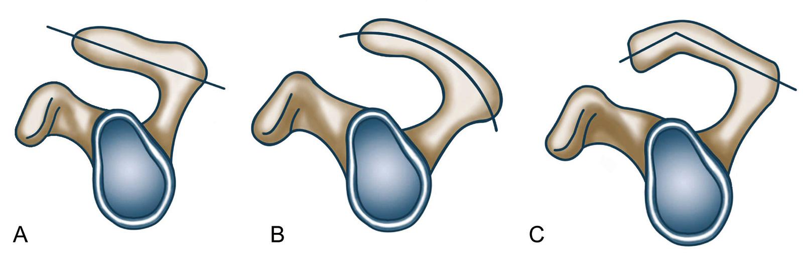Abb. 2-7: Einteilung nach Bigliani: Typ 1 (A), Typ 2 (B) und Typ 3 (C)