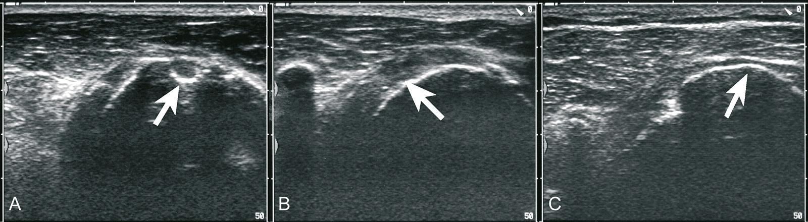 Abb. 2-8: Ultraschall einer Rotatorenmanschettenruptur: Nullrotation mit Sulcus bicipitalis (A), Außenrotation mit Darstellung des Subscapularis (B) und Innenrotation mit Fehlen des Supraspinatus bei Vorliegen einer Ruptur (C)