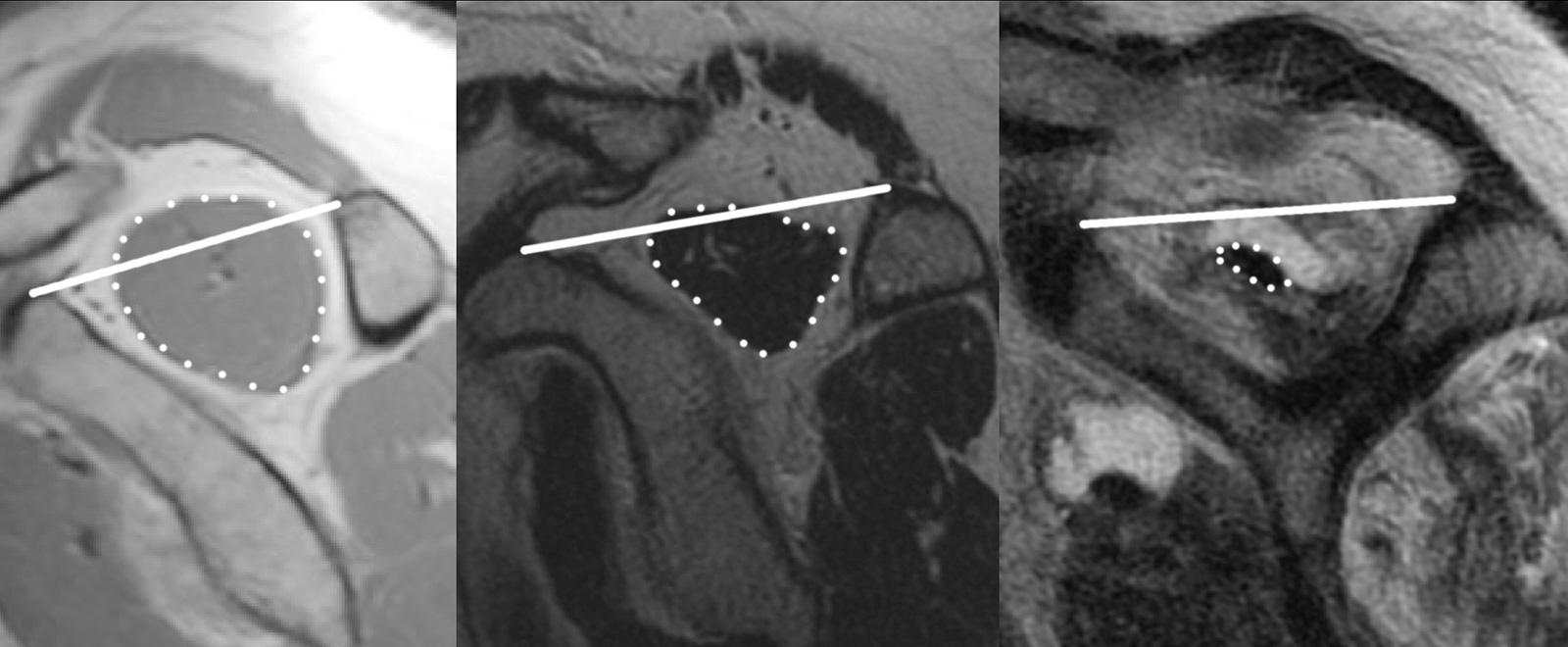 Abb. 2-9: MRT Bildgebung zur Beurteilung der Muskelatrophie des M. supraspinatus: keine Atrophie: Grad I nach Goutallier (A), moderate Atrophie: Grad II nach Goutallier (B), nahezu Vollständige Atrophie und fettige Infiltration: Grad IV nach Goutallier (C