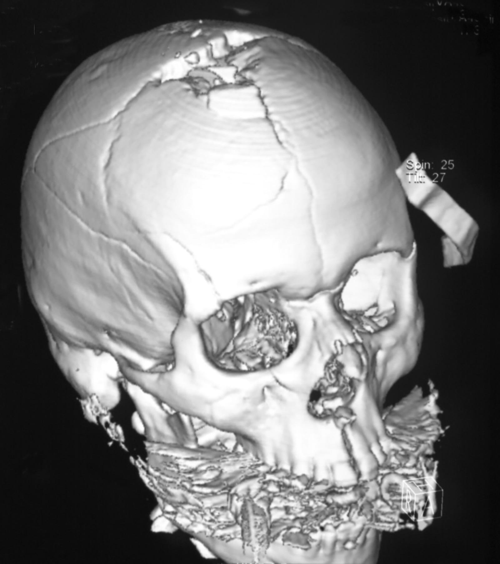 Abb. 3-1: Kopfschussverletzung mit hochparietalem Projektilaustritt