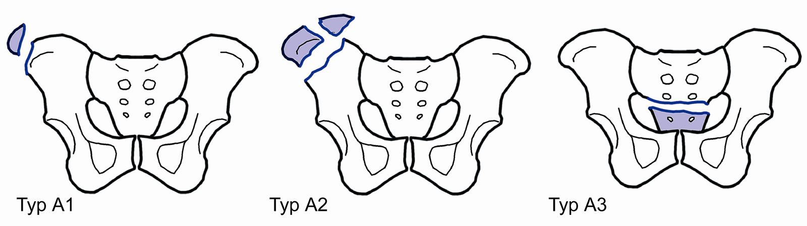 Abb. 3-12: ABC Klassifikation nach Tile: Beispiele für Typ A Frakturen