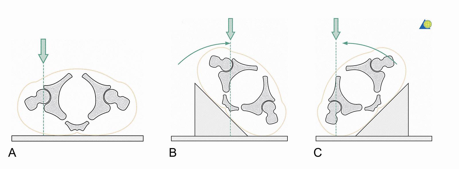 Abb. 3-19: Röntgenbildgebung: AP (A), Obturator-Aufnahme (B), Ala-Aufnahme (C), (mit freundlicher Genehmigung von AO Publishing, Copyright © 2003, by AO Publishing, Switzerland)