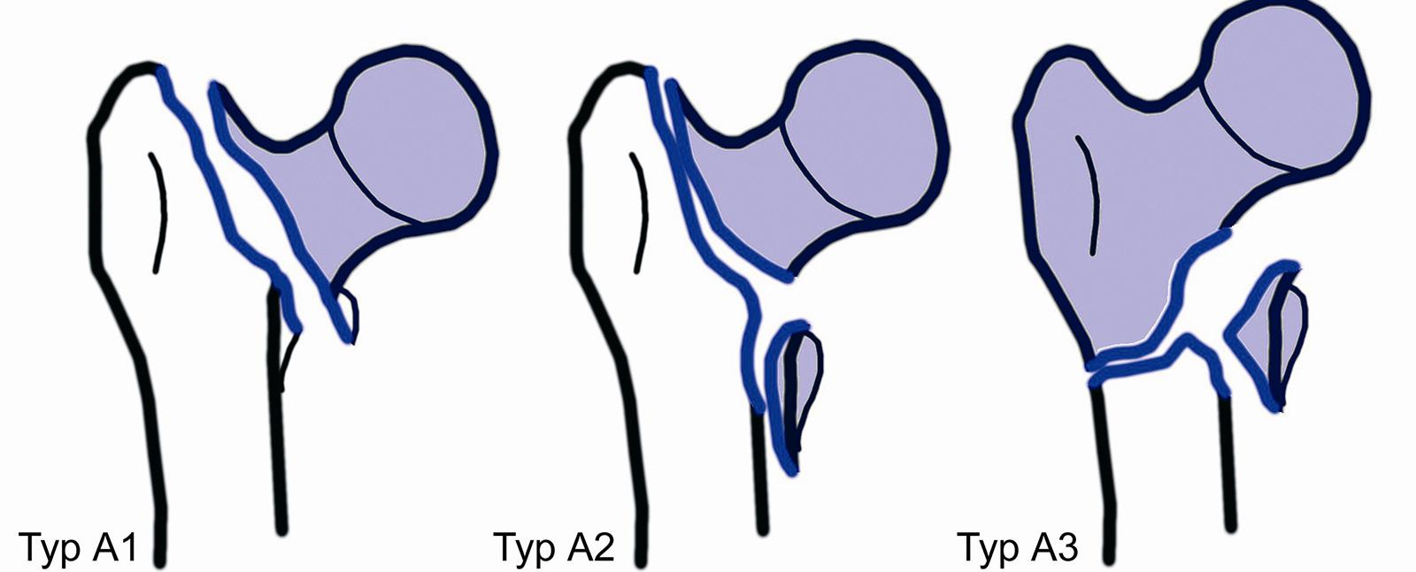 Abb. 3-31: Beispiele für eine A1, A2 und A3 Fraktur