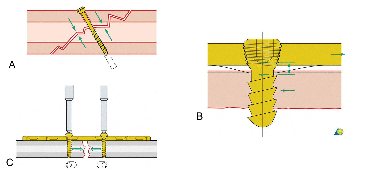 Abb. 3-3: Zugschraube die den Bruchspalt zusammenzieht (A), Locking Schraube (B), DC-Platte: exzentrische Schraubenlage: durch Anziehen der Schrauben wird der Bruchspalt komprimiert (C), (mit freundlicher Genehmigung von AO Publishing, Copyright © 2003, b
