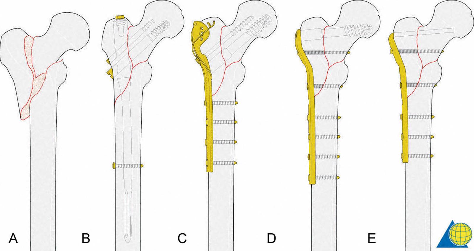 Abb. 3-33: Intertrochantäre Fraktur vom Typ A3 (A), Fixierung mit: einem PFN Proximal Femur Nagel (B), mit einer DHS dynamischen Hüftschraube mit Trochanterplatte (C), Dynamische Kondylenschraube (DCS) (D) oder einer Winkelplatte (E) (mit freundlicher Gen