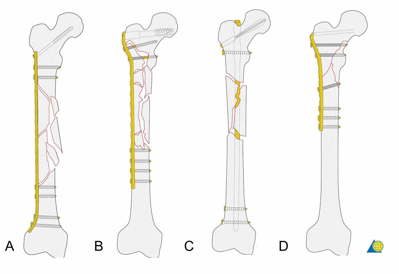 Abb. 3-38: Therapieoptionen für die Stabilisierung subtrochantärer und diaphysärer Frakturen: Plattenostheosynthese (A), dynamische Kondylenschraube (DCS) (B), Femurnagel (UFN) oder langer Gammanagel (C), Winkelplatte (D) (mit freundlicher Genehmigung von