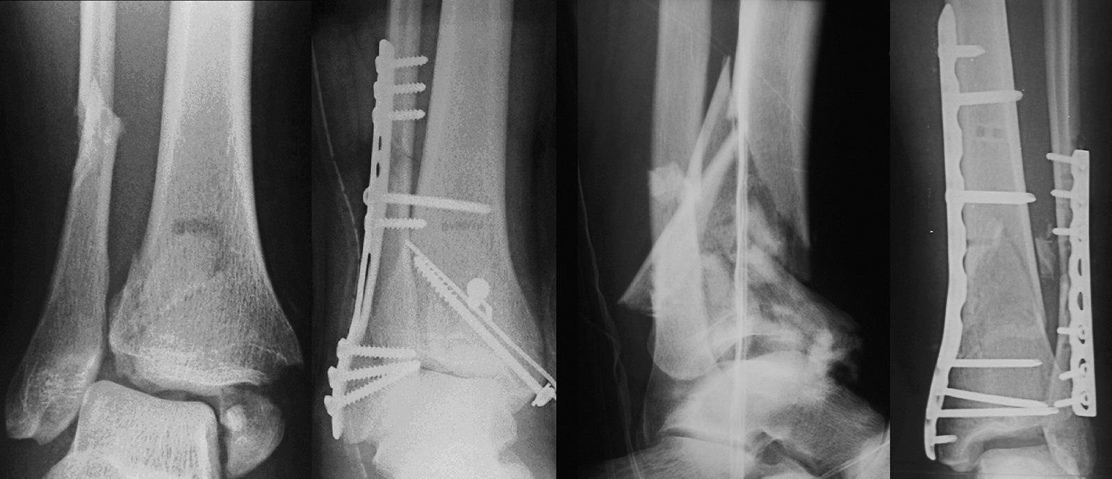 Abb. 3-53: Röntgenbild einer trimalleoläre Luxationsfraktur des oberen Sprunggelenkes (A). Die Therapie erfolgte mit einer Plattenosteosynthese des Wadenbeins, einer Syndesmosenstellschraube sowie einer Schraubenosteosynthese des Volkmannschen Dreiecks un