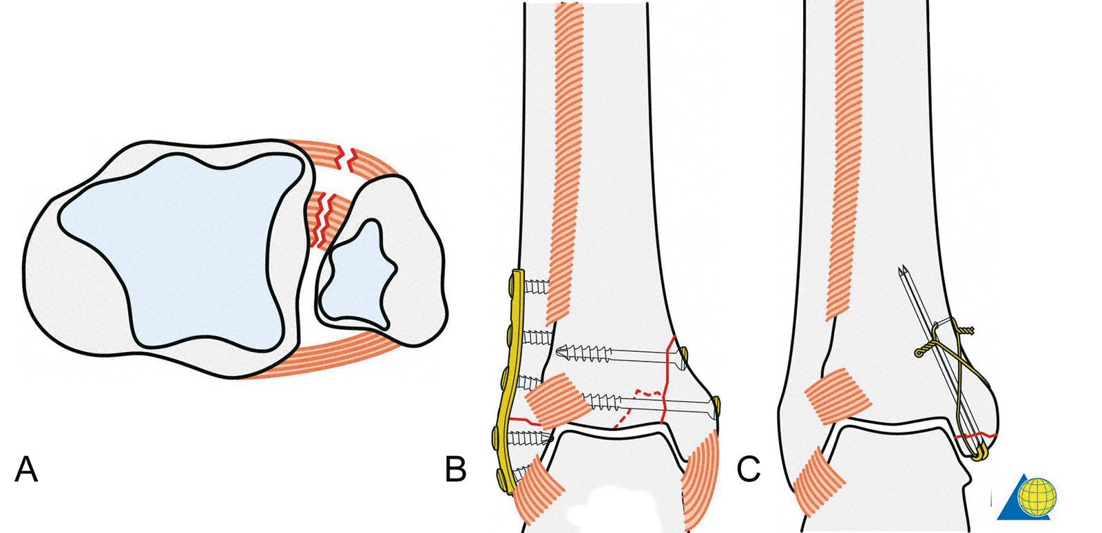 Abb. 3-55: Verletzung des Lig. tibiofibulare anterius und der Syndesmose (A), Fibulafraktur Typ A nach AO und Fraktur des medialen Malleolus nach Fixierung (B), Typ A Fraktur des medialen Malleolus fixiert mit einer Zuggurtungsosteosynthese (C) (mit freun