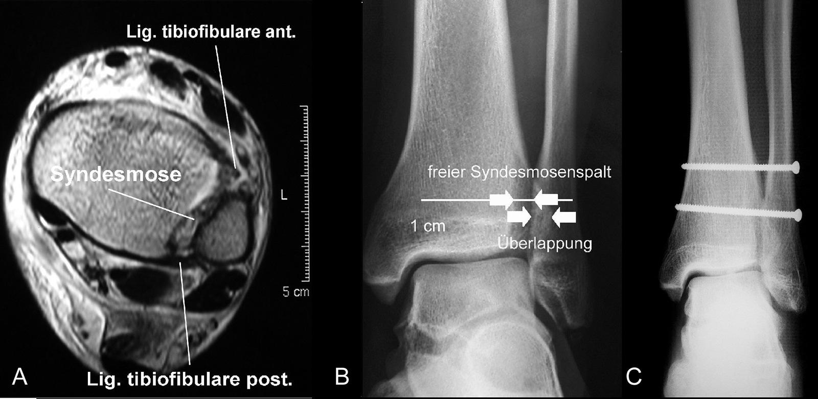 Abb. 3-56: MRT nach Maisonneuve Fraktur: Lig. tibiofibulare ant. und Syndesmose rupturiert, das Lig. tibiofibulare post. ist intakt (A). Beurteilung der Syndesmose im nativen Röntgenbild (B). Röntgenbild einer Syndesmosenstellschraube (C)