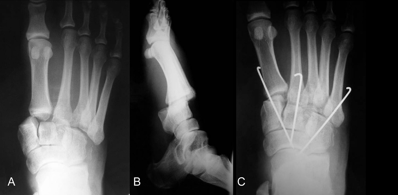 Abb. 3-60: Röntgenbild einer Lisfranc Luxationsfraktur vor (A,B) und nach geschlossener Reposition und K-Drahtfixierung