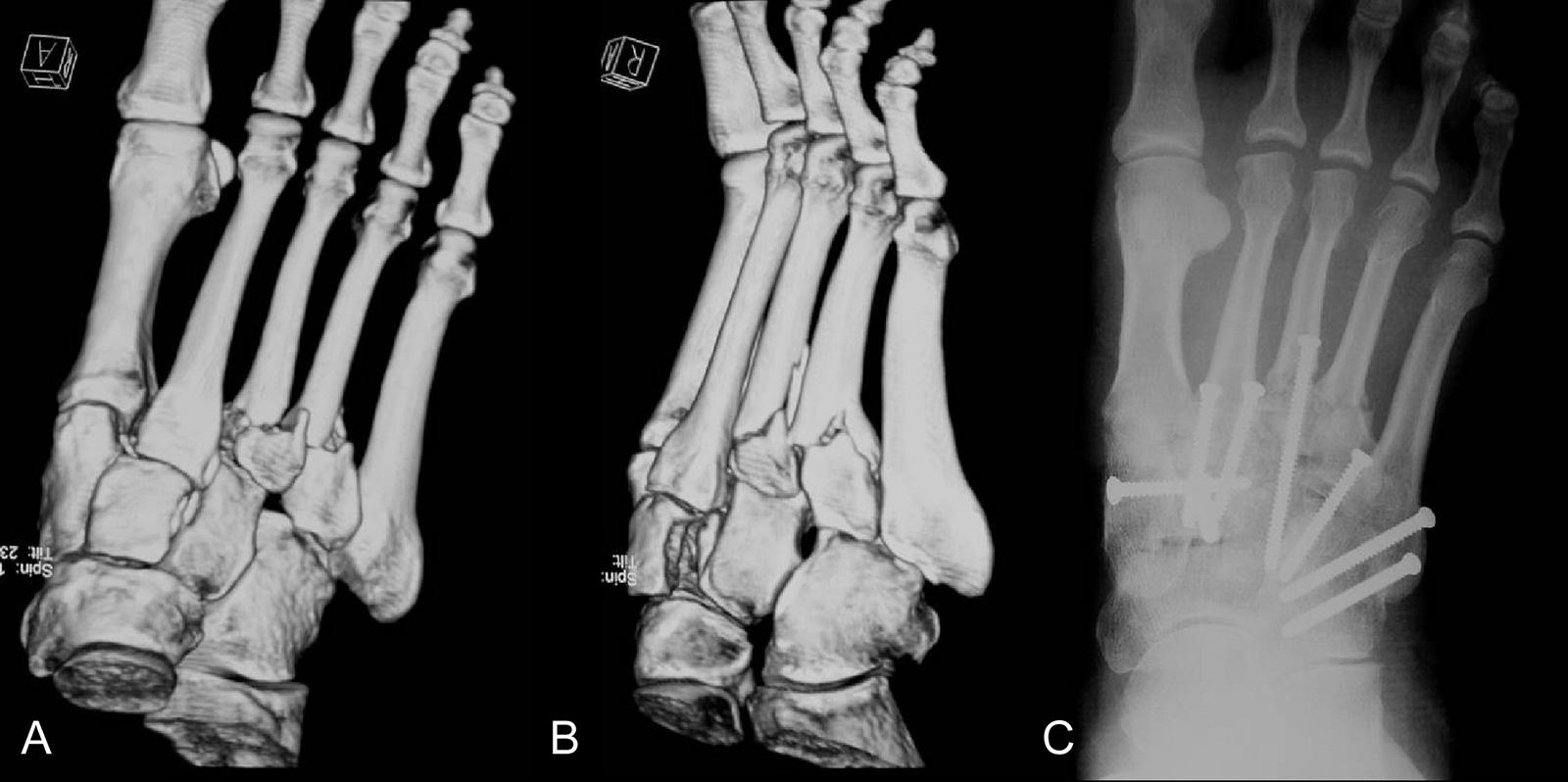 Abb. 3-61: Präoperative 3-D CT-Rekonstruktion (A,B) und postoperatives (C) Röntgenbild einer LisfrancLuxationsfraktur