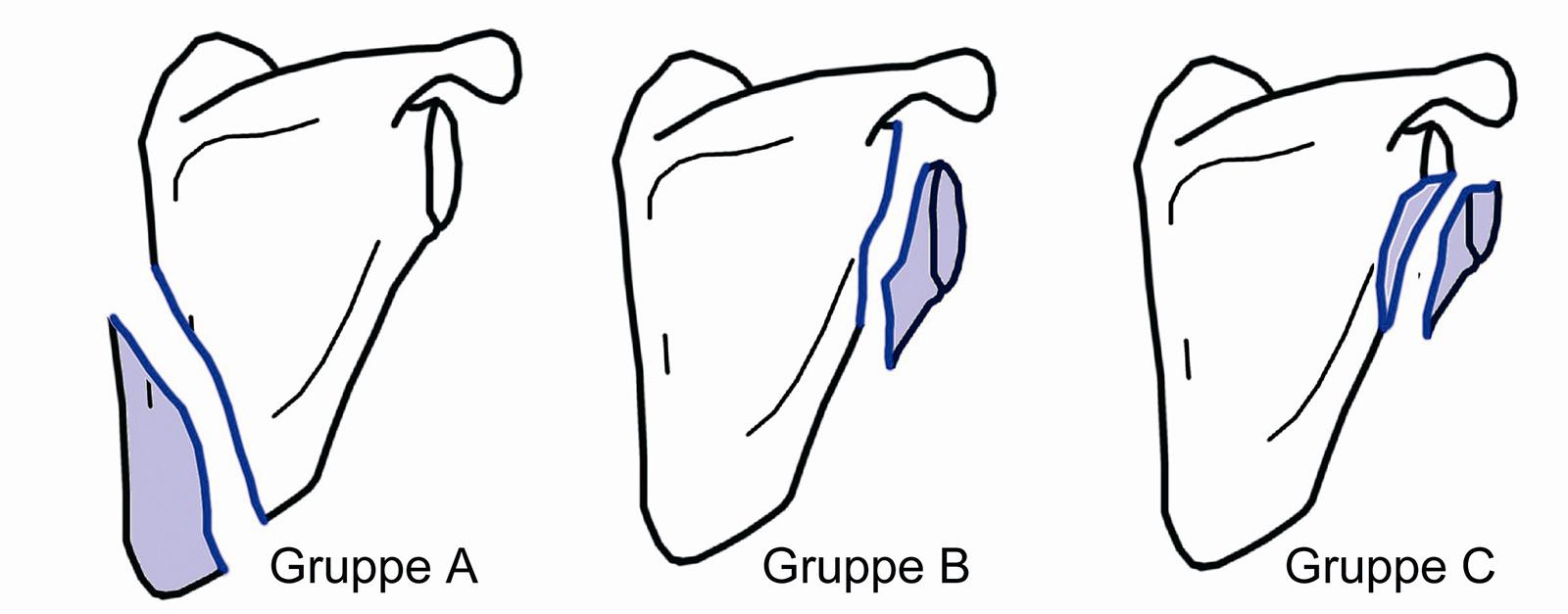 Abb. 3-62: Habermeyer -Klassifikation