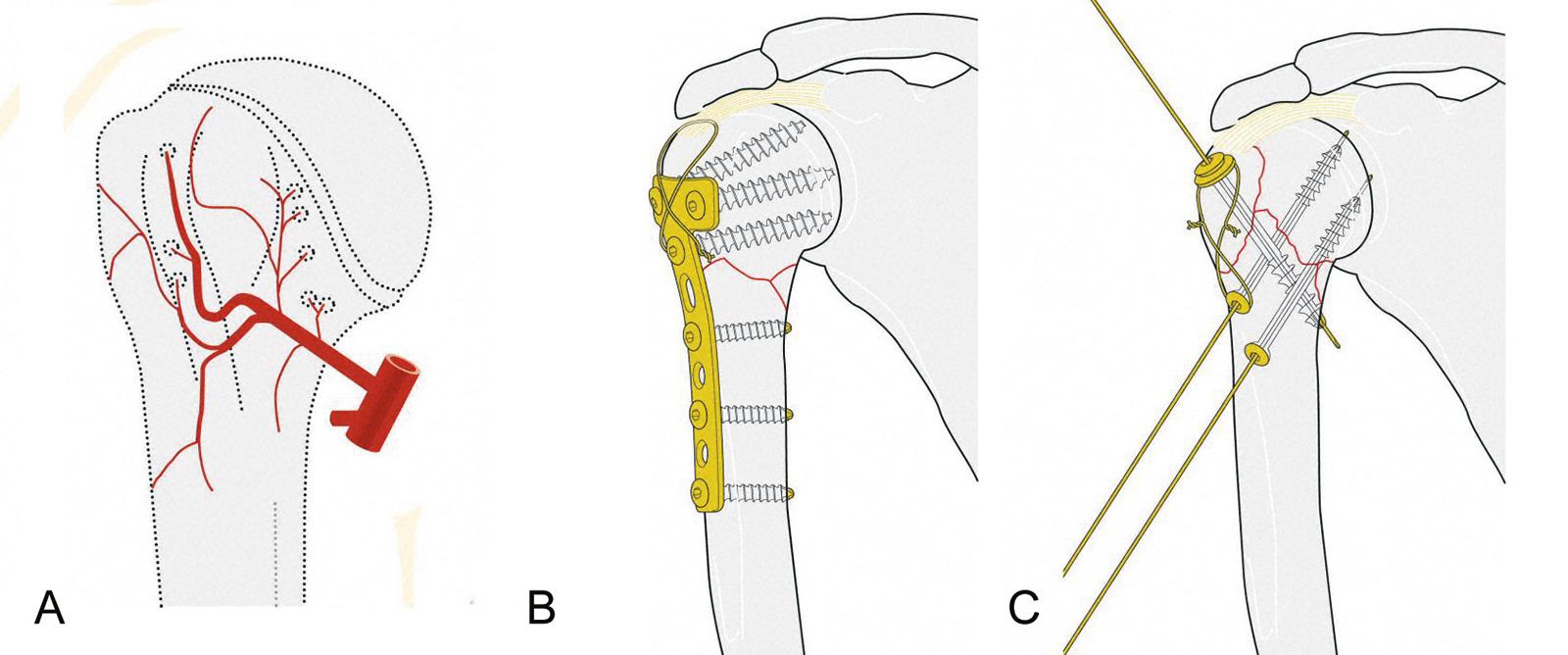 Abb. 3-69: Blutversorgung des Humeruskopfes durch die Arteria circumflexa (anterior und posterior) (A), Stabilisierung einer A3 Fraktur mit einer T-Platte und einer Zuggurtungsosteosynthese (B), Fixierung einer B2 Fraktur mit kanülierten Schrauben und ein