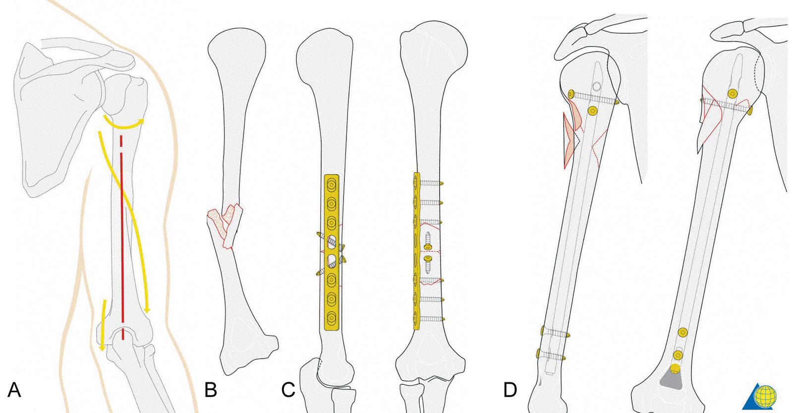 Abb. 3-74: Dorsaler Zugang zum Humerus unter Schonung des N. axillaris (1), N. radialis (2) und des N. ulnaris (3); Plattenosteosynthese einer B2 Fraktur mit einer 8 Lochplatte und Bruchspaltschrauben (B,C); Stabilisierung einer A3 Fraktur mit einem unauf