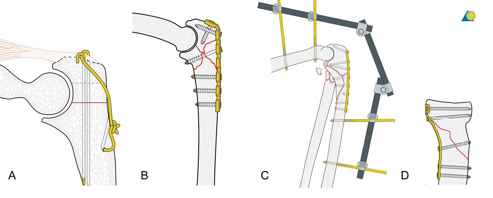 Abb. 3-81: Zuggurtungsosteosynthese einer einfachen Olekranonfraktur (A), Verplattung einer komplexeren Olekranonfraktur (B) mit zusätzlicher Anlage eines gelenkübergreifenden Fixateur (C). Osteosynthese einer Radiusköpfchenfraktur mit einer Miniplatte (D