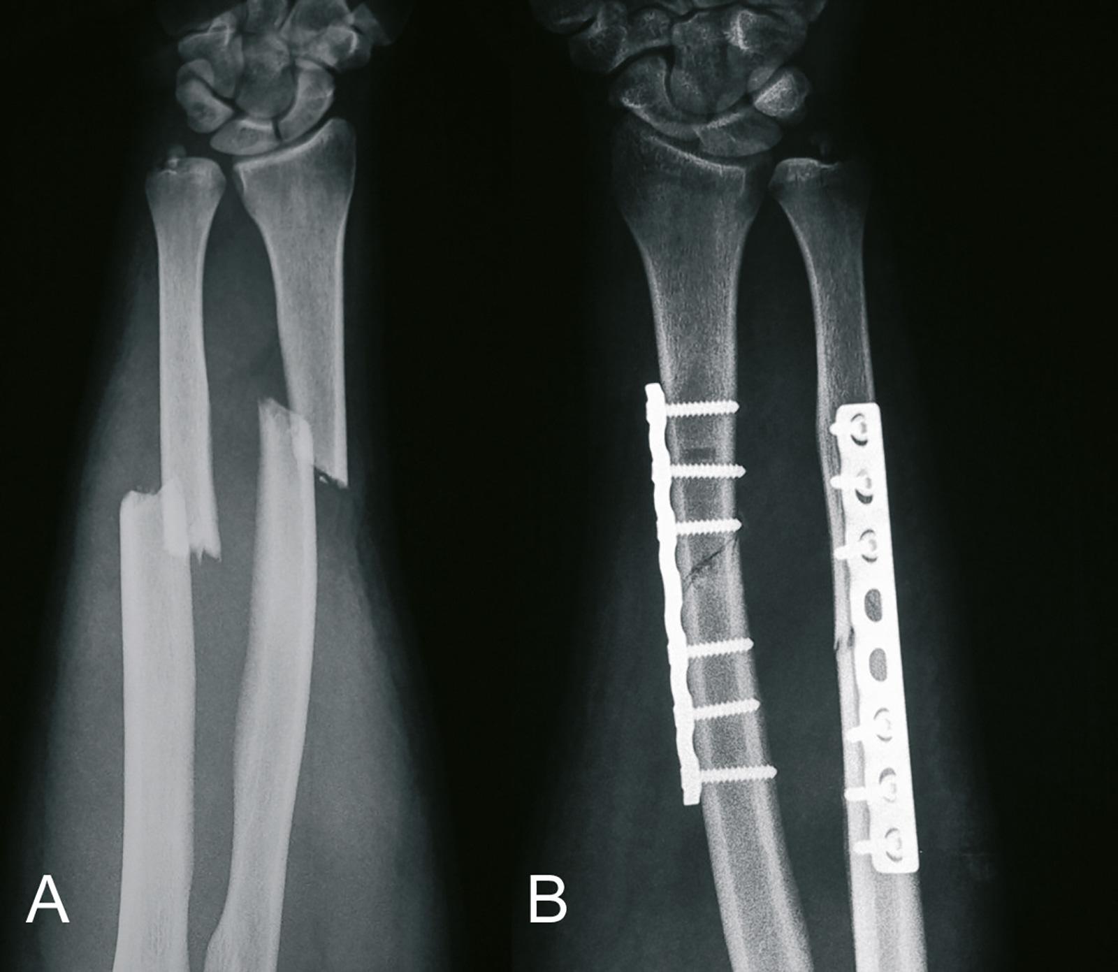 Abb. 3-84: Dislozierte Unterarmfraktur (A) und Röntgenbild nach Versorgung mit einer Plattenosteosynthese (B)