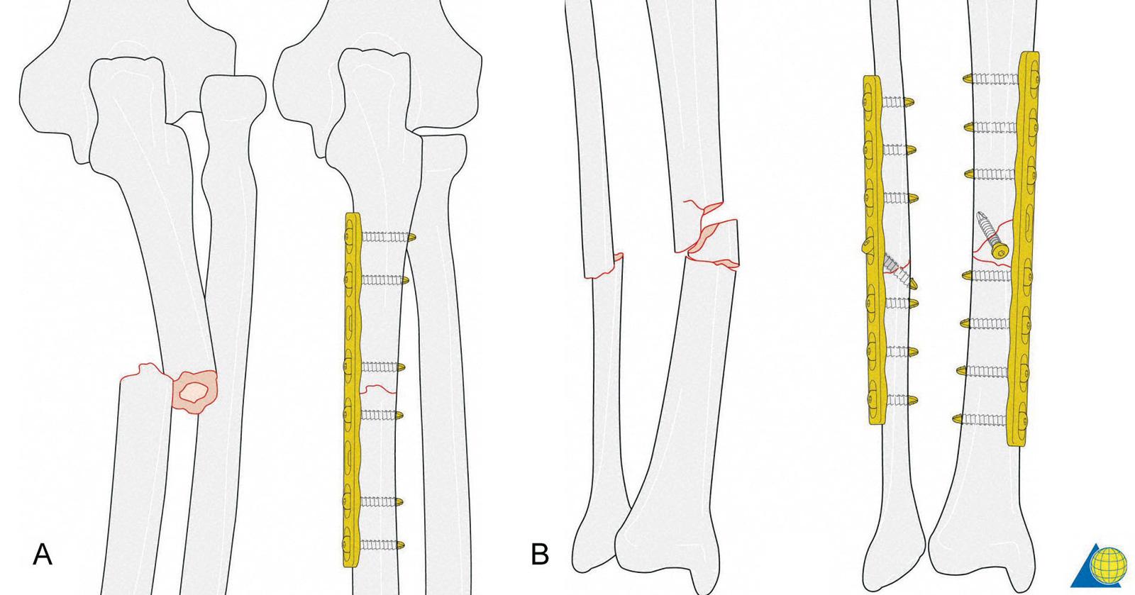 Abb. 3-85: Ulnafraktur mit Luxation des Radiusköpfchens (Monteggia Fraktur). Die Stabilisierung der Ulnafraktur führt in der Regel automatisch zu einer Reposition der Radiusköpfchenluxation (A); Einfache Fraktur beider Knochen und Fixierung mit einer Plat