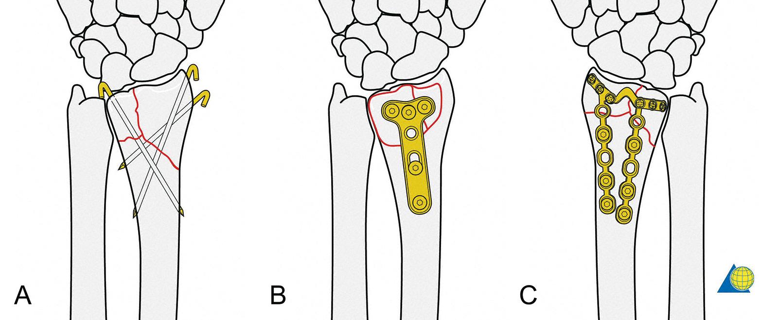 Abb. 3-89: Perkutane K-Draht-Osteosynthese (A), palmare T-Platte (B) oder dorsale Platte (C) zur Stabilisierung einer distalen Radiusfraktur (mit freundlicher Genehmigung von AO Publishing, Copyright © 2003, by AO Publishing, Switzerland)