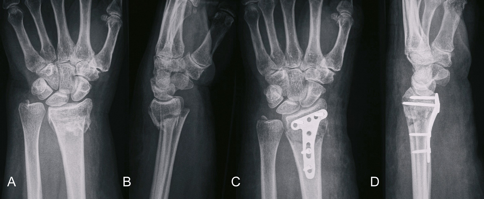 Abb. 3-91: A3 Fraktur des distalen Radius (A,B), Osteosynthese mit einer palmaren winkelstabilen Plattenosteosynthese (C,D)