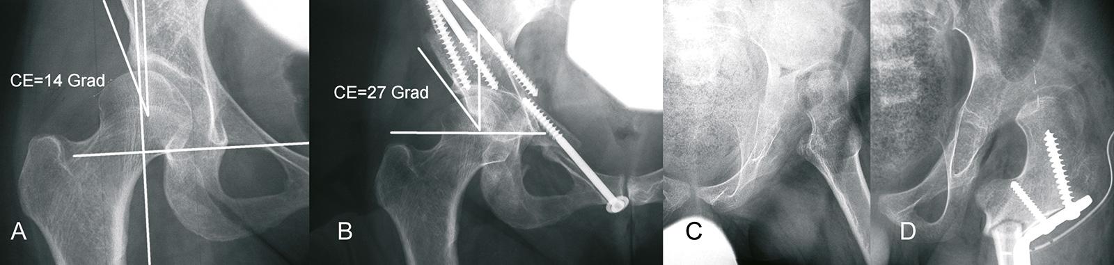 Abb. 4-10: Tönnis-Osteotomie bei einem 17-jährigen Mädchen mit Verbesserung des CE-Winkels von 14 auf 27 Grad (A-B). Schanz-Osteotomie bei einem Kind mit einer spastischen Tetraparese (C-D) (Eigentum des Instituts für Klinische Radiologie der Universität
