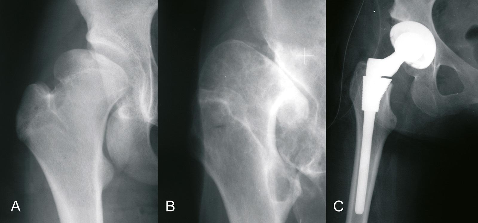 Abb. 4-11: Fortschreitende Arthrose bei einem Patienten mit einer Hüftdysplasie (A-B). Im Alter von 43 Jahren erfolgte die Implantation einer zementfreien S-ROM Hüftprothese (C)