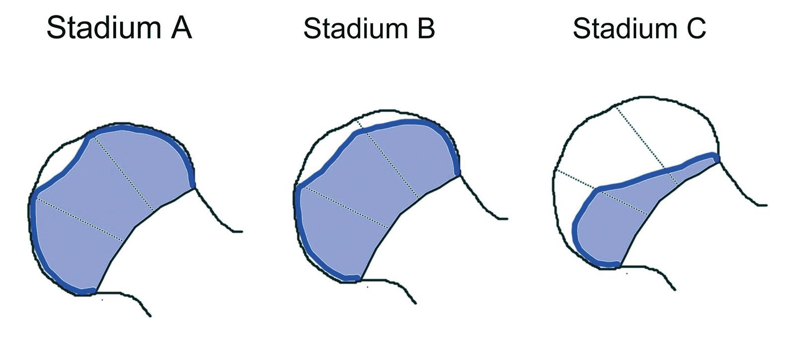 Abb. 4-13: Herring Klassifikation: grau Darstellung des unbeteiligten Kopfanteils