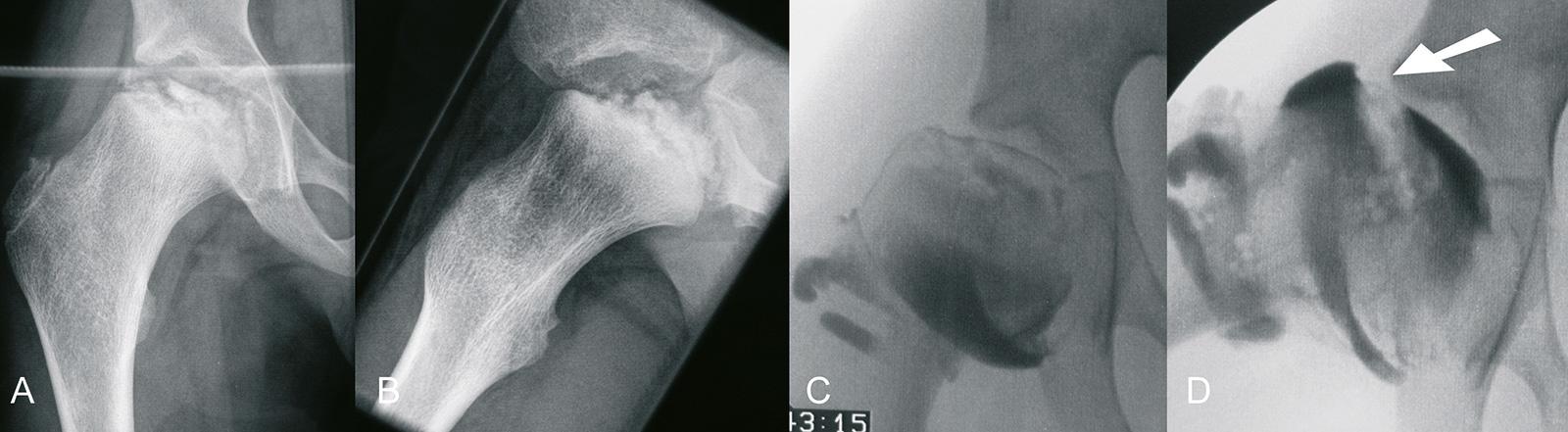 Abb. 4-15: Morbus Perthes bei einem 8-jährigen Kind (A-B). In der Arthrografie (C-D) zeigt sich eine HingeAbduction, d.h. bei vermehrter Abduktion kommt es zu einem Anstoßen der lateralen Kopfanteile und Verbreiterung des medialen Gelenkspaltes (D)
