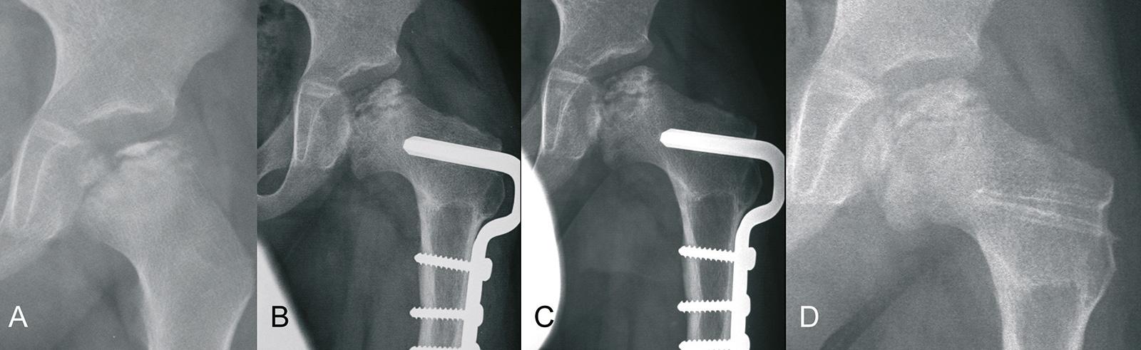Abb. 4-16: 5-jähriger Patient mit einem Morbus Perthes (A), nach derotierender-varisierender Osteotomie (DVO) im Alter von 5.5 (B) und 6.5 Jahren (C), sowie nach Metallentfernung im Alter von 8 Jahren (D) (Eigentum des Instituts für Klinische Radiologie d