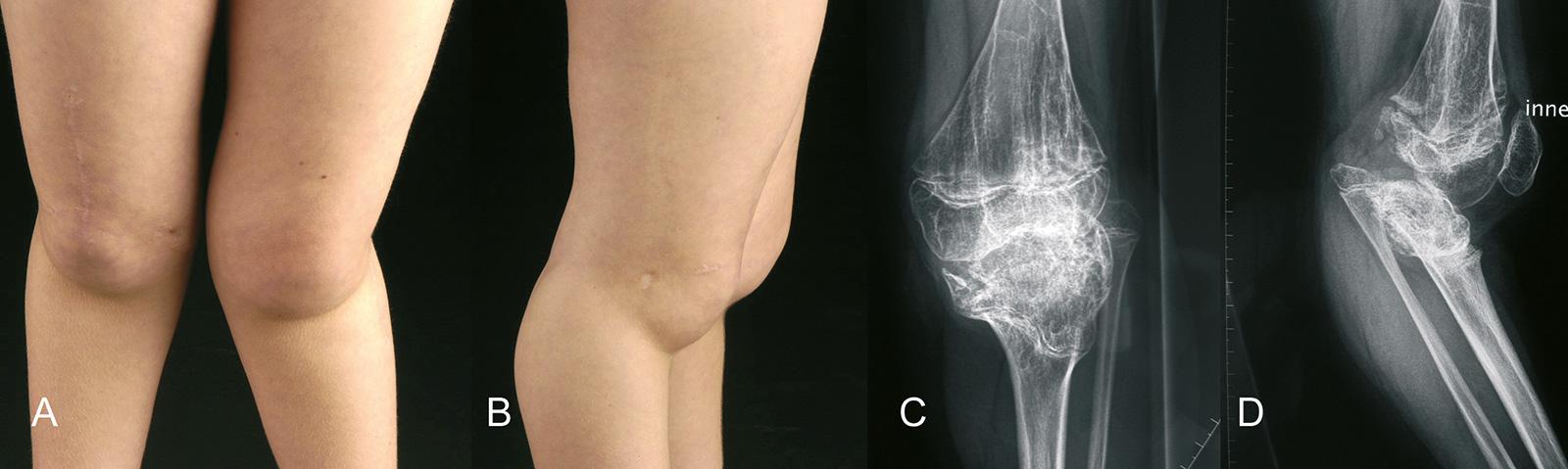 Abb. 4-20: 8-jähriger Patient mit einer multiplen epiphysären Dysplasie. Es zeigt sich eine Deformierung der proximalen Tibia mit resultierender Subluxation des Kniegelenks