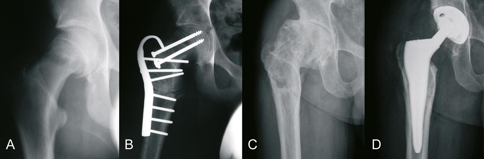 Abb. 4-25: Hüftkopfabrutsch (A), nach Imhäuser-Osteotomie (B), sekundäre Arthrose (C) und Implantation einer zementfreien Individualprothese (D) (Eigentum des Instituts für Klinische Radiologie der Universität Münster)