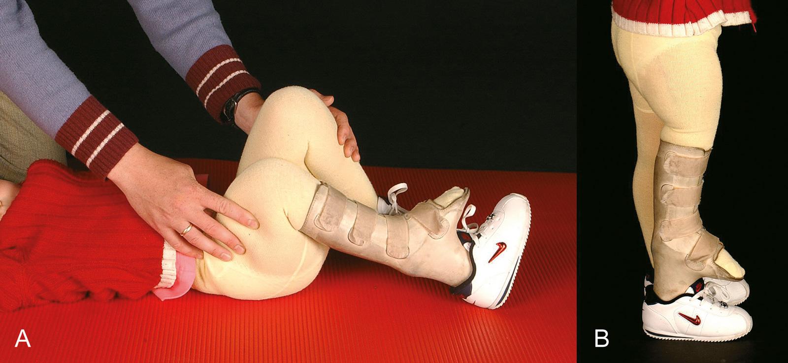 Abb. 4-27: Ausgleich der Beinlängendifferenz mit einem Etagenschuh. Der Fuß verbleibt in Neutralstellung, um ein plantigrades Auftreten nach Ausgleich der Beinlängendifferenz zu ermöglichen