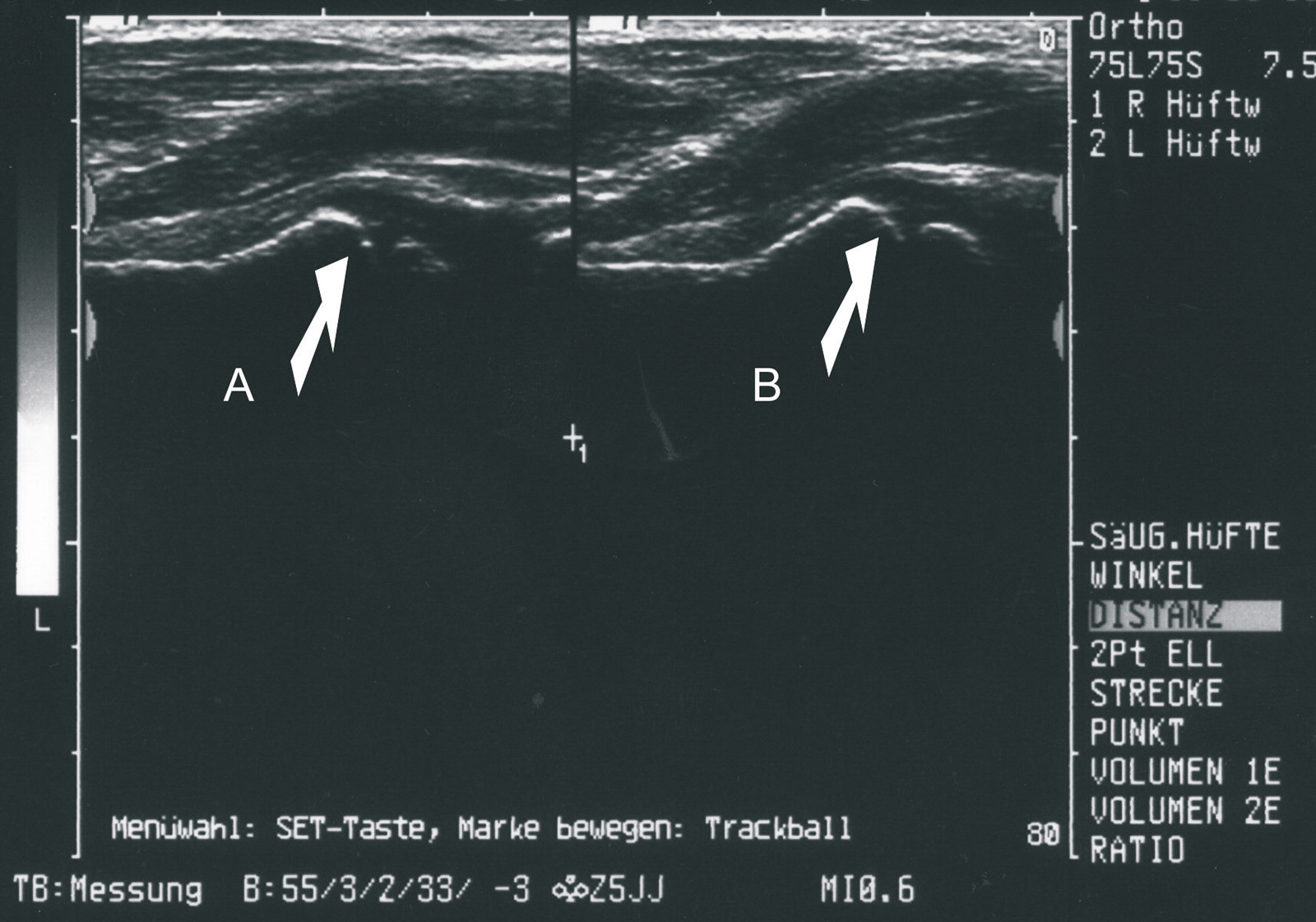 Abb. 4-28: Ultraschall zum Ausschluss eines Hüftgelenksergusses, Vergleich zur Gegenseite
