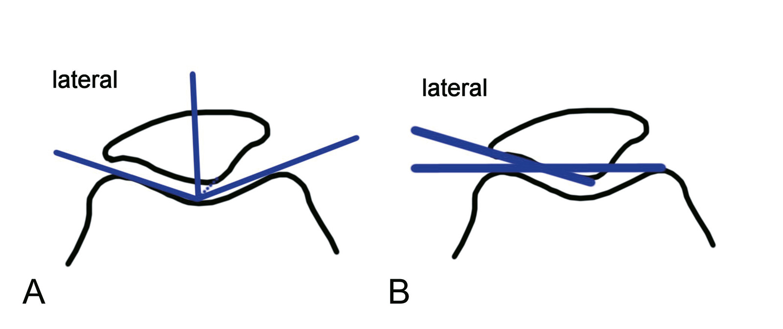 Abb. 4-31: Verbindung zwischen Patellafirst und tiefster Stelle des Sulcus intercondylaris liegt medial der Winkelhalbierenden des Sulcuswinkels (A), Laurin-Winkel (B)