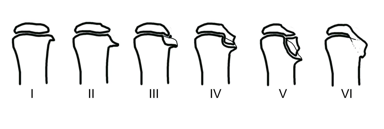 Abb. 4-33: Langenskiöld Klassifikation (in Anlehnung: Langenskiöld A. J Bone Joint Surg 1964; 46-A: 1405)
