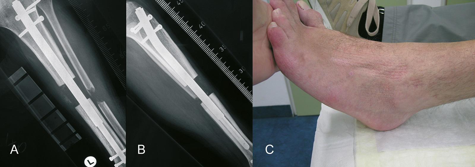 Abb. 4-37: Beinverlängerung mit einem Tibiaverlängerungsnagel (A-B). Die Tibiaverlängerung kann zu einem Spitzfuß führen (C)