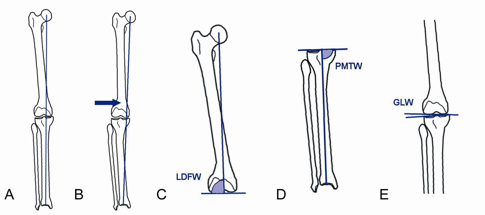 Abb. 4-38: Analyse einer Deformität: mechanische Beinachse normal (A), Varusfehlstellung (B), lateraler distaler Femurwinkel (C), proximaler medialer Tibiawinkel (D) und Gelenklinienwinkel (E)