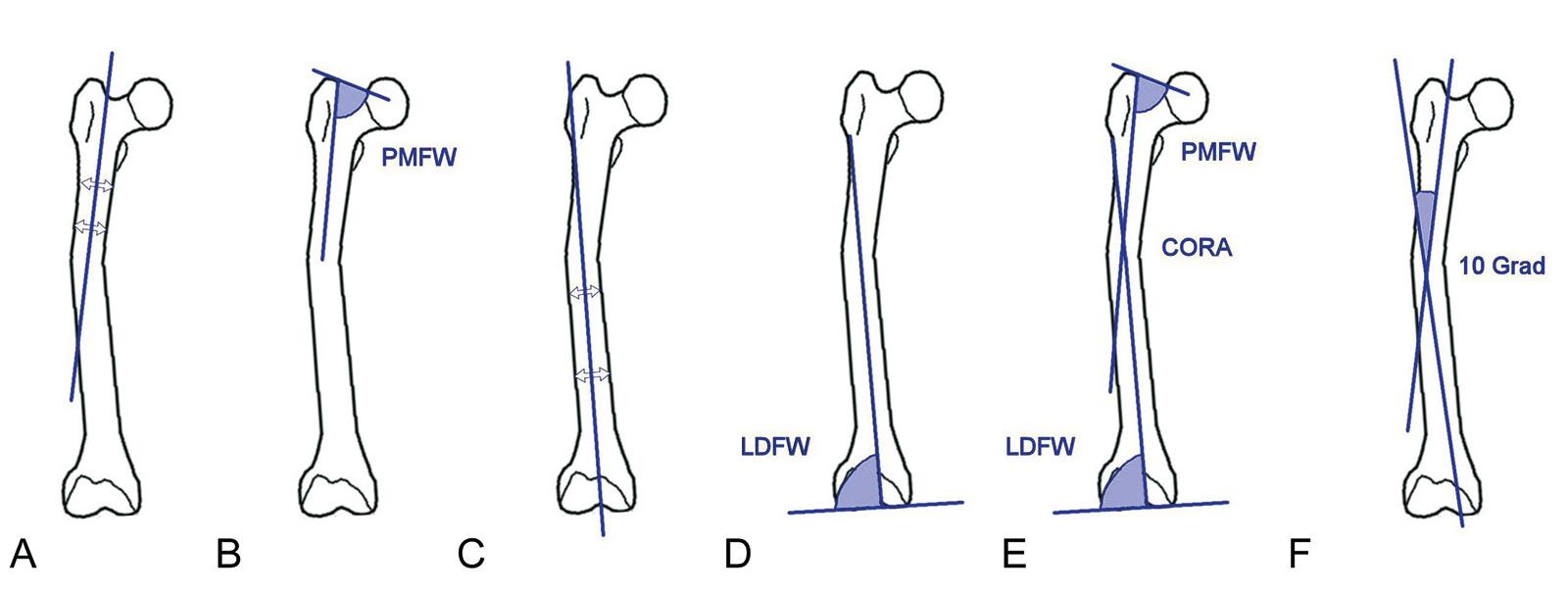 Abb. 4-40: Rekonstruktion der proximalen anatomischen Achse: Verbindung von 2 Mittelpunkten des proximalen Femurs (A), mit Hilfe des proximalen medialen Femurwinkels (B); Rekonstruktion der distalen anatomischen Achse: Verbindung von 2 Mittelpunkten des d