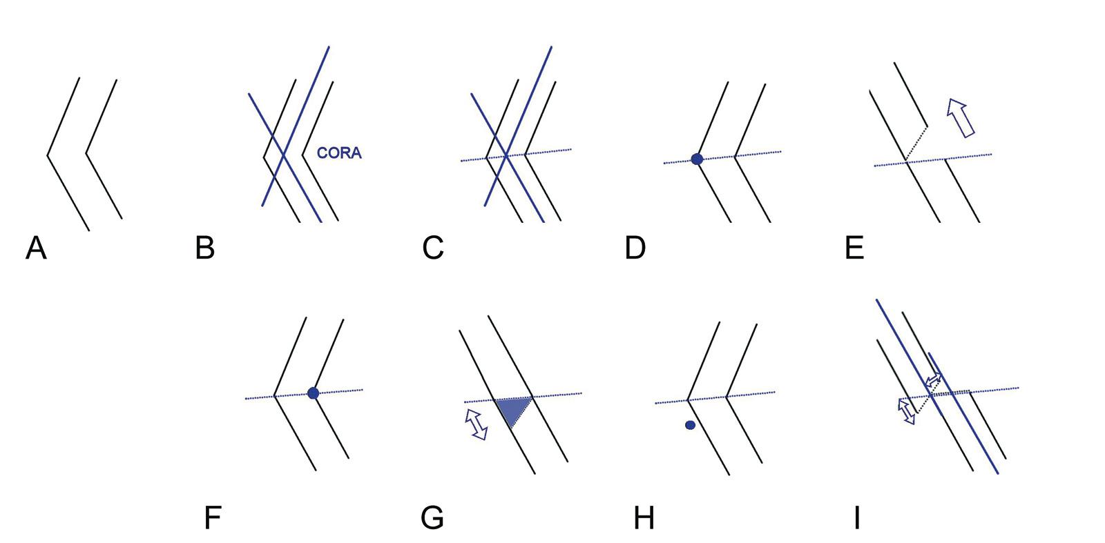 Abb. 4-41: Deformität (A), Bestimmung des Centers of Rotation and Angulation (B), Winkelhalbierende (C), aufklappende Osteotomie (D-E), zuklappende Osteotomie (F-G), Korrektur um einen Drehpunkt außerhalb der Winkelhalbierenden führt zu einer Translation