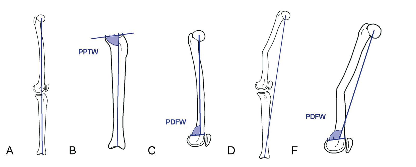 Abb. 4-42: Mechanische Achse in voller Streckung (A), posteriorer proximaler Tibiawinkel (B), posteriorer distaler Femurwinkel (C), mechanische Achse bei einer Femurdeformität (D), posteriorer distaler Femurwinkel bei einer Femurdeformität (F)