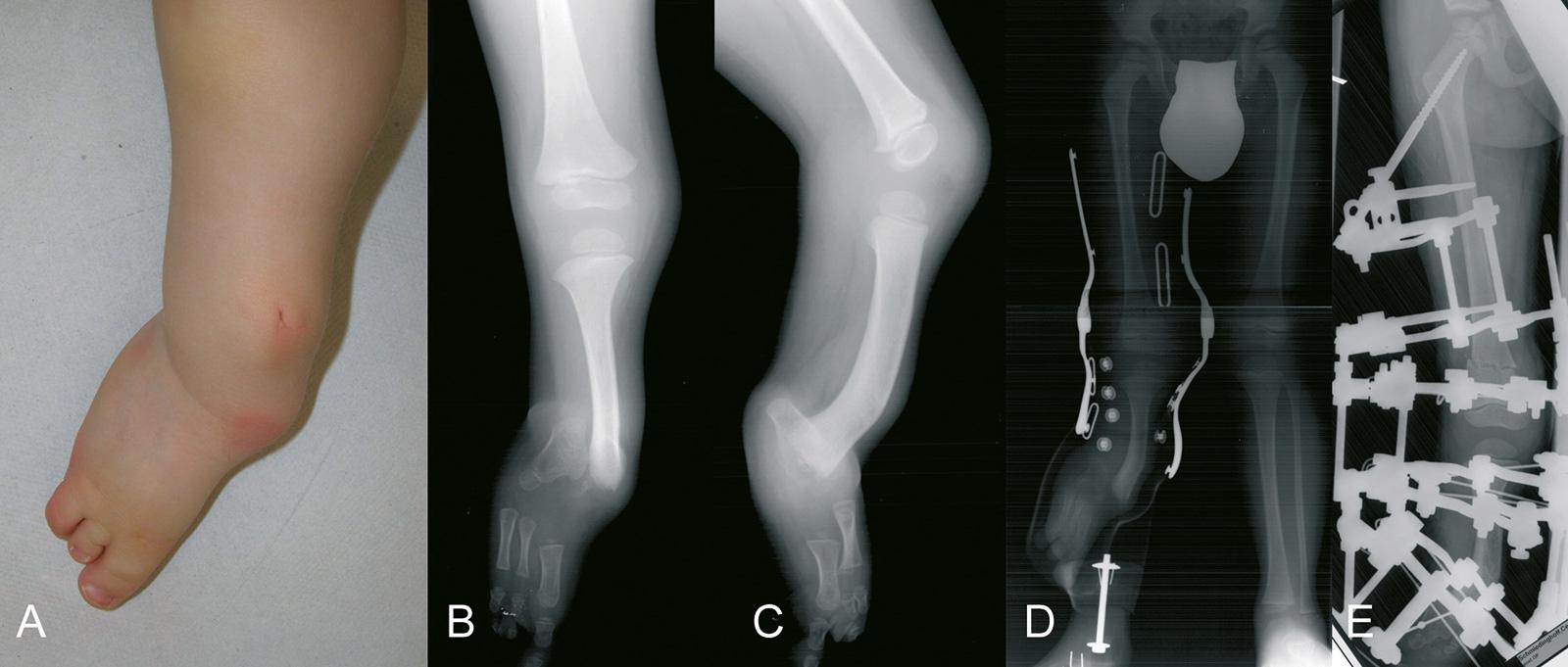 Abb. 4-46: Fibulaaplasie (A-C), Versorgung mit Etagenschuh (D), Fixateur-assistierte Verlängerung und Deformitätenkorrektur (E)