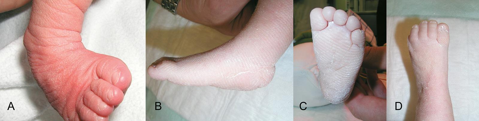 Abb. 4-52: Klumpfuß: vor Beginn der Gipsbehandlung (A), nach der Gipstherapie (B-D). Es verbleibt eine geringe Spitzfußkomponente (B)