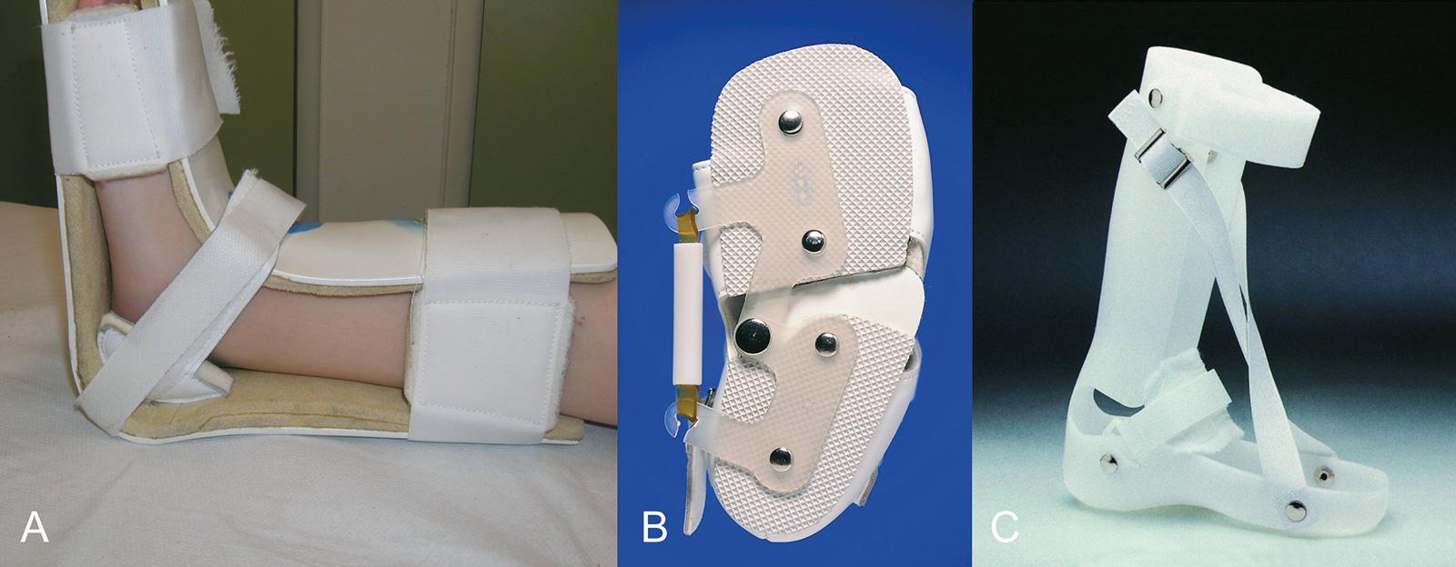 Abb. 4-53: Nachtlagerungsschiene zur Spitzfußprophylaxe (A), GloboPed Sichelfußorthese (B), GloboPed dynamische dorsale Lagerungsschiene (C) (B & C: Mit freundlicher Genehmigung der Bauerfeind GmbH)