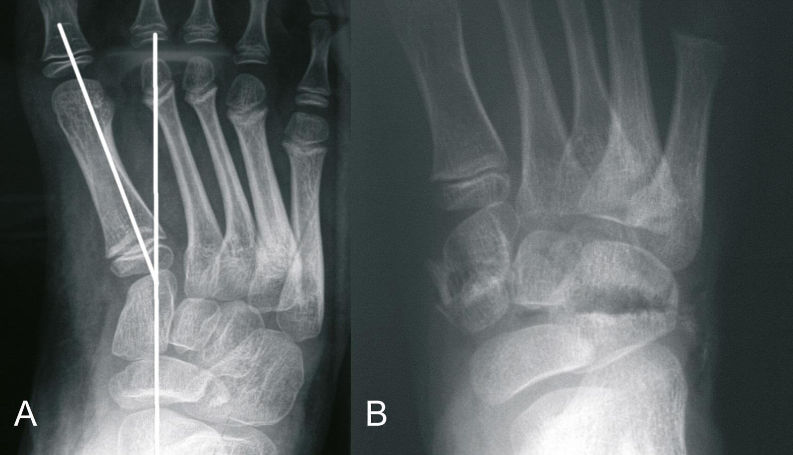 Abb. 4-56: Vor (A) und nach (B) Additions-SubtraktionsOsteotomie (Eigentum des Instituts für Klinische Radiologie der Universität Münster)