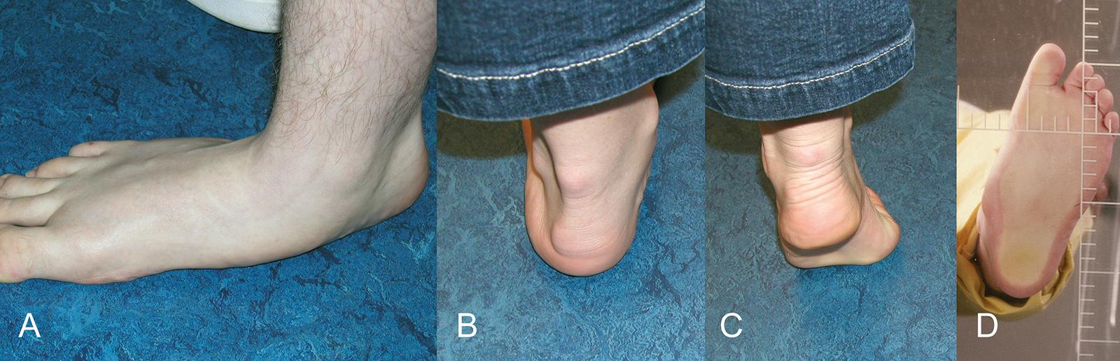 Abb. 4-57: Knicksenkfuß, Verlust des Fußlängsgewölbes (A) und Rückfußvalgus (B), Korrektur des Fuß- längsgewölbes im Zehenspitzenstand (C), Fußabdruck (D)