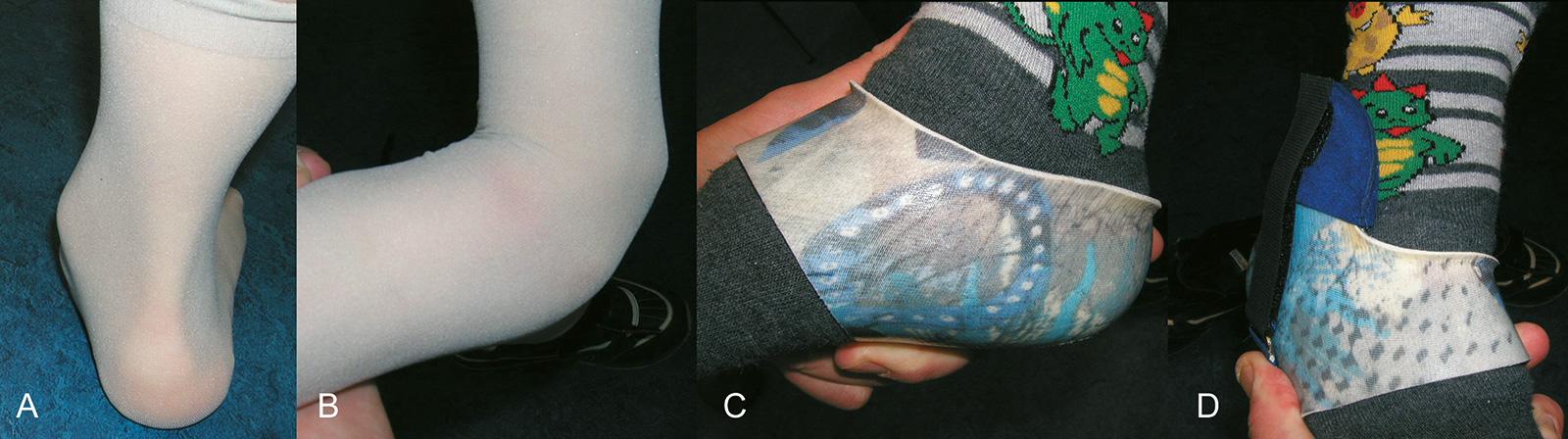 Abb. 4-58: Versorgung eines schweren Knicksenkfußes (A-B) mit einer Talusringorthese (C-D). Diese stützt sich durch eine Lasche lateral an der distalen Fibula (D) ab