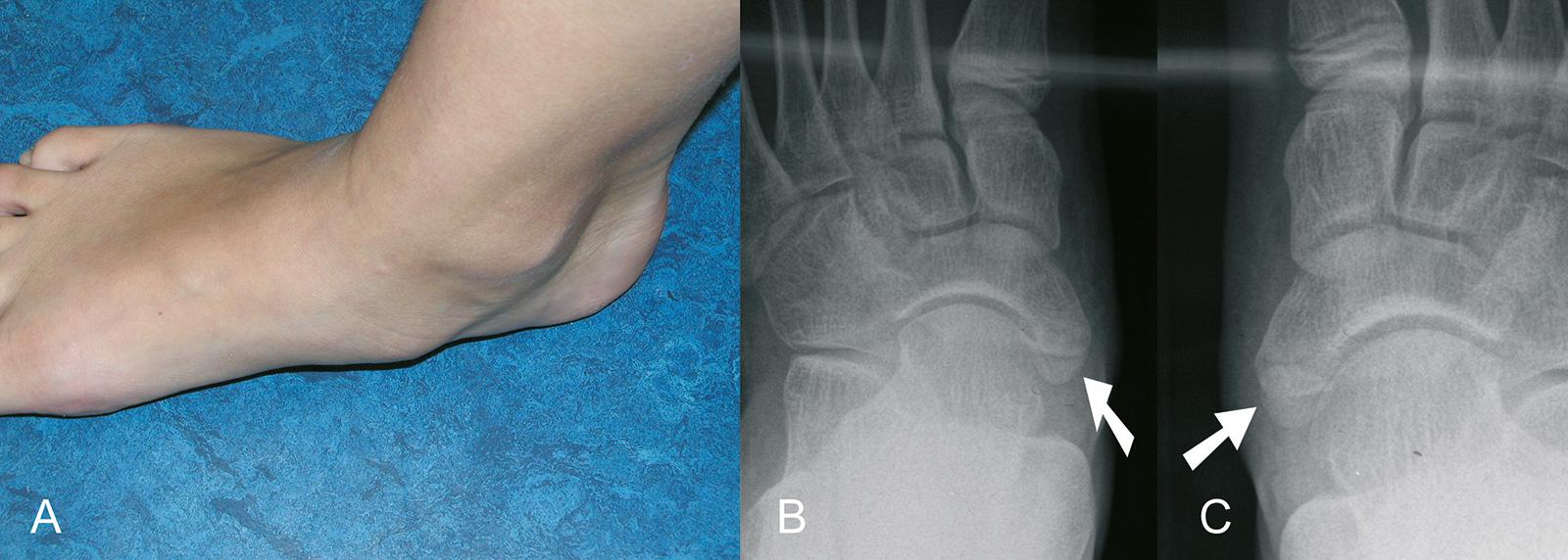 Abb. 4-64: Beidseitiges Os tibiale externum: Klinik (A) und Röntgenbild (B-C)