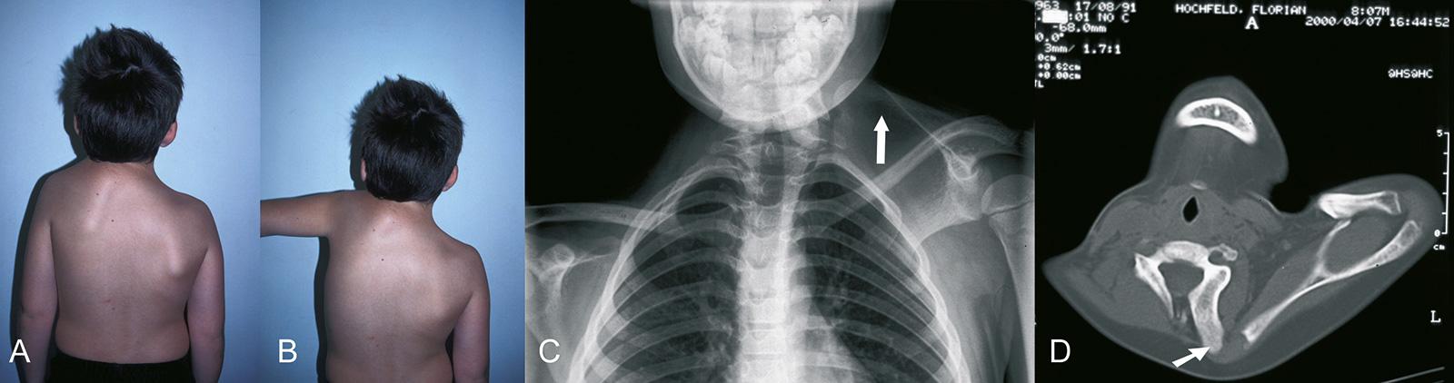 Abb. 4-67: Junge mit einer Sprengel'schen Deformität (A-B), Schulterhochstand (C), das CT zeigt ein Os omovertebrale (C&D)