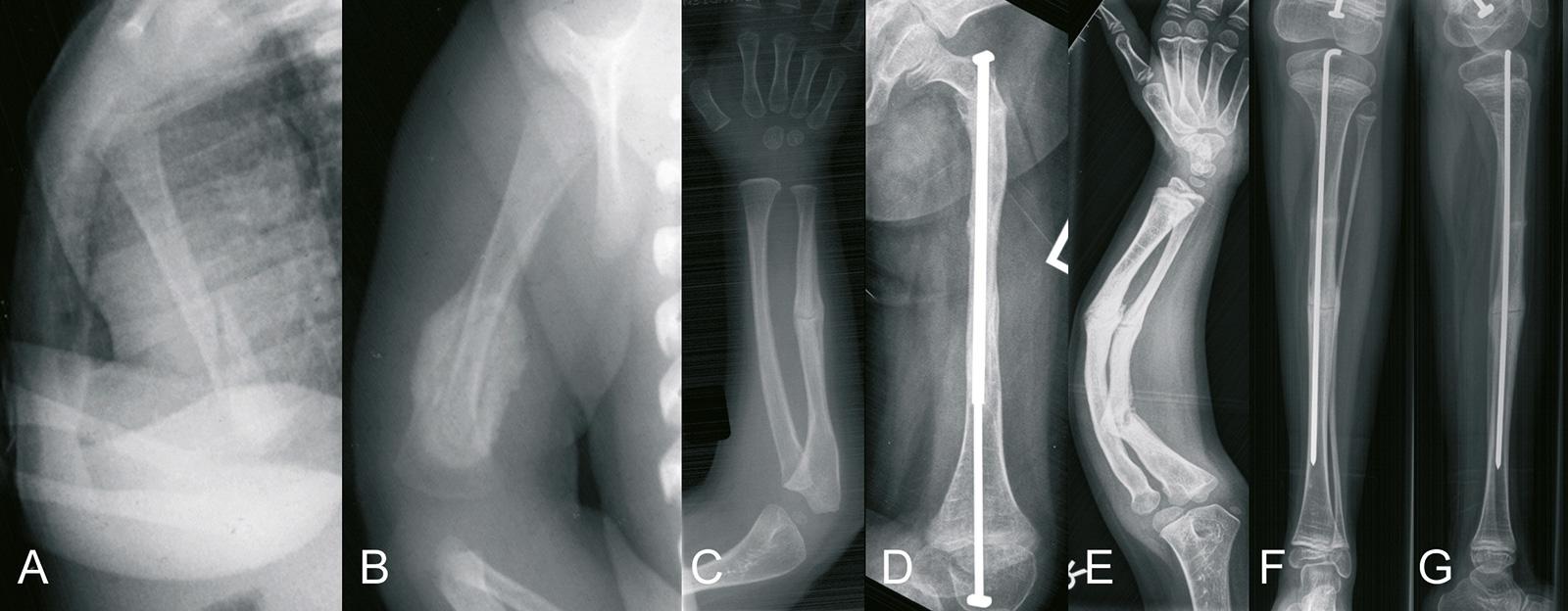 Abb. 4-72: Beispiel eines Krankheitsverlaufes: Humerusfraktur im Alter von 2 Wochen (A) und Ausheilung der Fraktur mit 2 Monaten (B), Ulnafraktur im Alter von 4 Jahren (C), Stabilisierung einer Femurfraktur mit einem Bailey-Nagel im Alter von 6 Jahren (D)