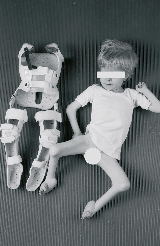 Abb. 4-8: Kind mit Arthrogryposis. Kontrakturprophylaxe mit Lagerungsschienen